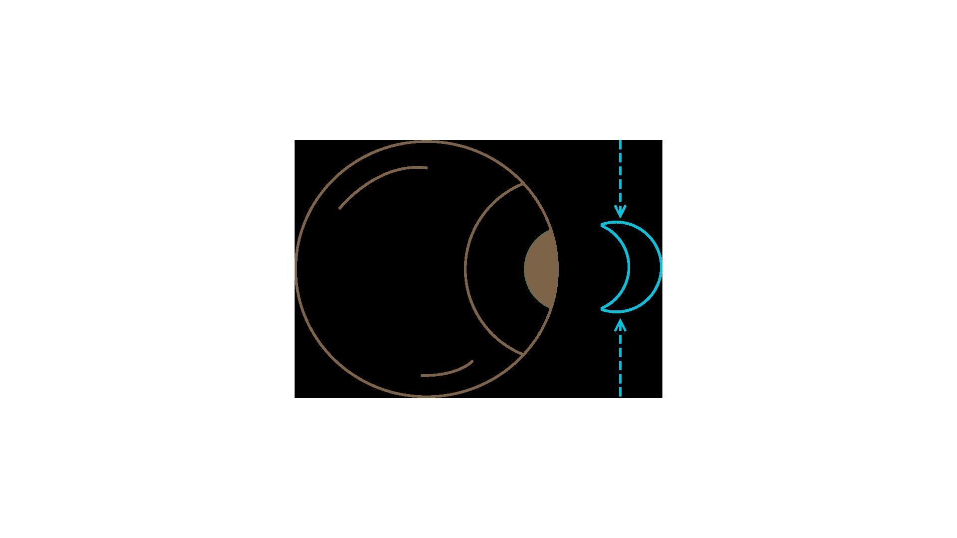 access-optic-type-lentilles-souples-001
