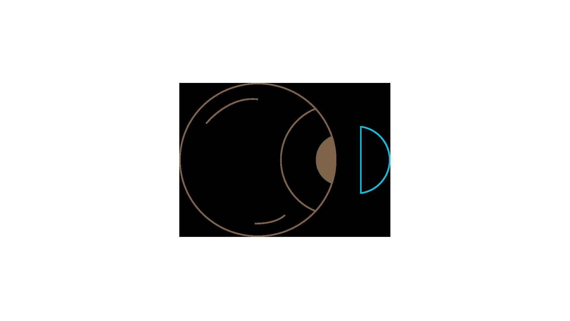 access-optic-type-lentilles-rigides-001