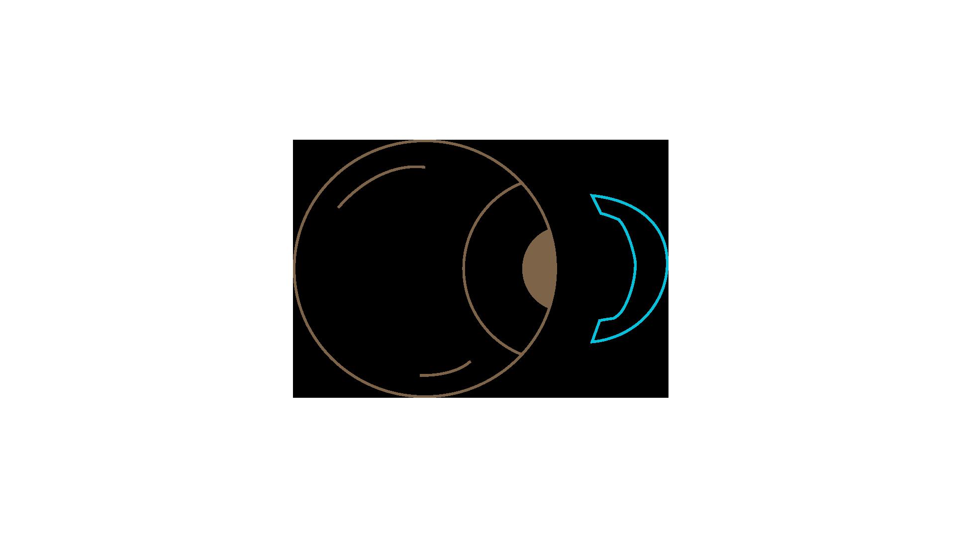 access-optic-type-004