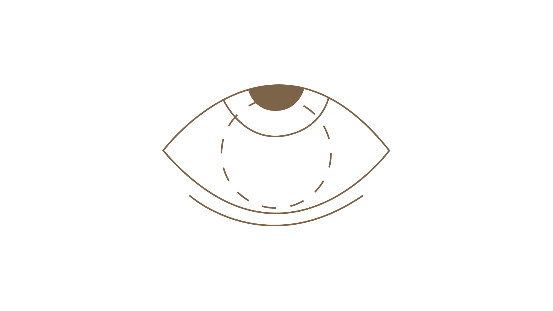 access-optic-utilisation-002